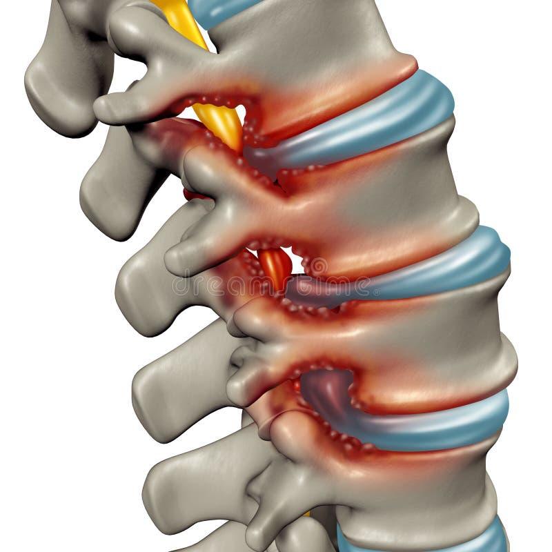 Problema médico espinal da estenose ilustração stock