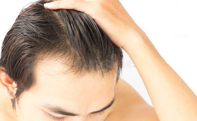 Problema serio de la pérdida de pelo del hombre joven del primer para el impostor de la atención sanitaria imagen de archivo libre de regalías