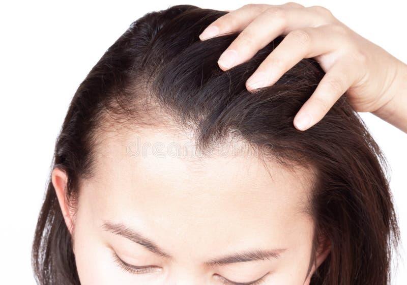 Problema serio de la p?rdida de pelo de la mujer para el champ? y el concepto de producto de belleza, foco selectivo de la atenci imagen de archivo