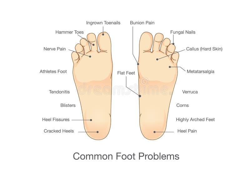 Problemas comunes del pie ilustración del vector