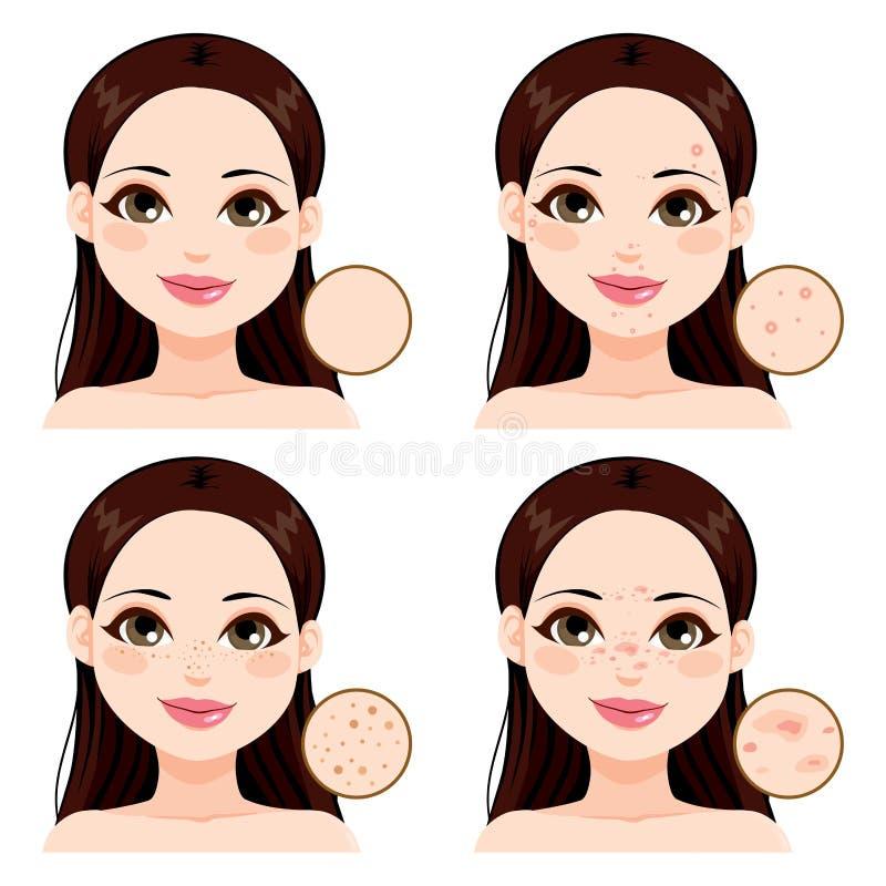 Problemas de pele da mulher ilustração royalty free