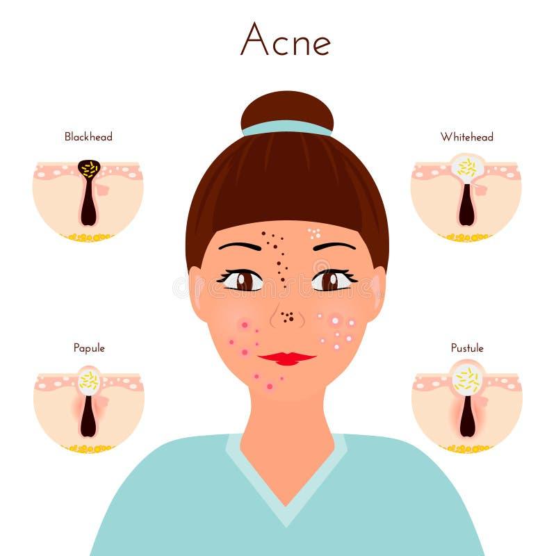 problemas de piel Closse de la muchacha encima de la cara con diversos tipos de espinillas del acné Tratamientos y vector faciale libre illustration