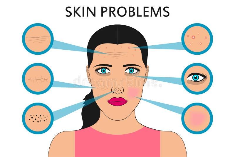 Problemas de piel femeninos de la cara Acné y espinillas, puntos negros, rojez, sequedad, círculos debajo de los ojos y arrugas V stock de ilustración