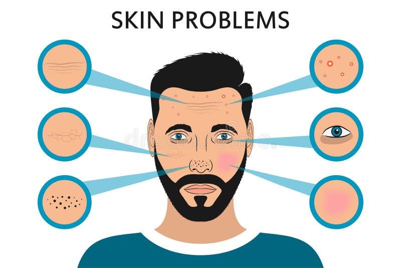 Problemas de piel masculinos de la cara Acné y espinillas, puntos negros, rojez, sequedad, círculos debajo de los ojos y arrugas  ilustración del vector