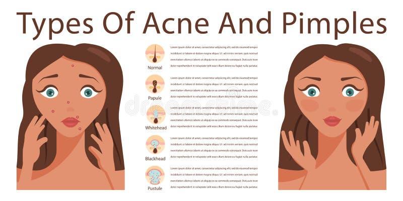 Problemas del acné de la piel ilustración del vector