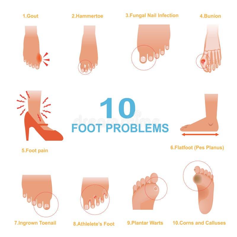 Problemas del pie libre illustration