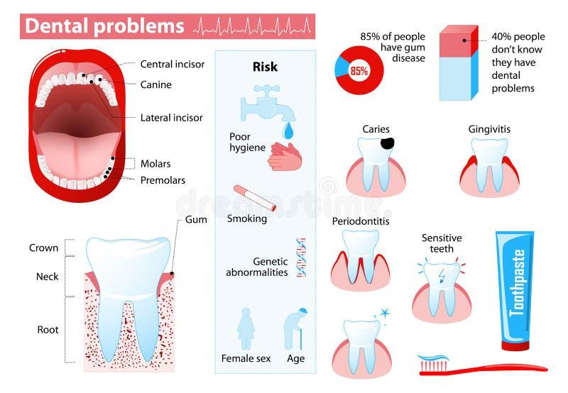 Problemas dentais ilustração royalty free