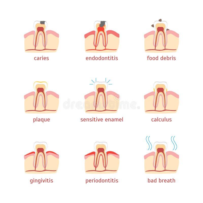 Problemas dentais dos desenhos animados ajustados Vetor ilustração do vetor