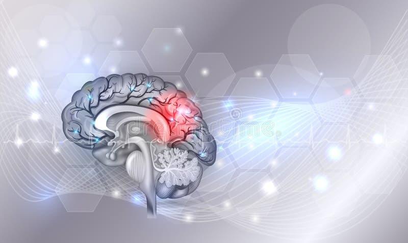 Problemas do cérebro ilustração royalty free