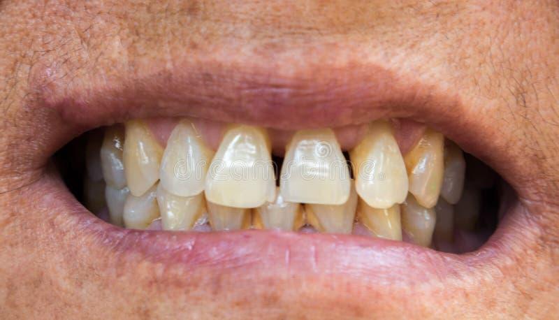 Problemas dos dentes da mulher adulta do close up com gomas ou tártaro para saudável fotografia de stock royalty free