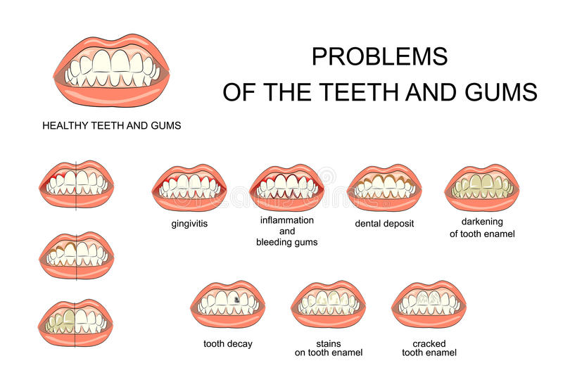 Problemas dos dentes e das gomas ilustração do vetor