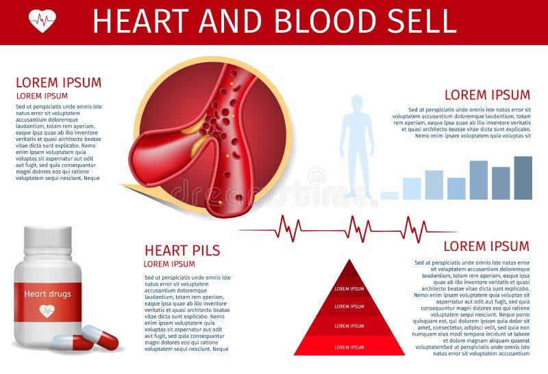 Problemas e maneiras de tratar a bandeira da doença cardíaca ilustração do vetor