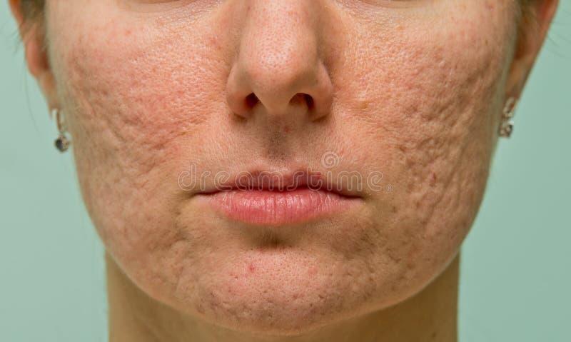 Problematische Haut lizenzfreie stockbilder
