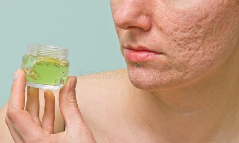 Problematische huidbehandeling stock foto
