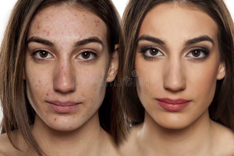 Problematisk makeup för hud före och efter royaltyfri bild