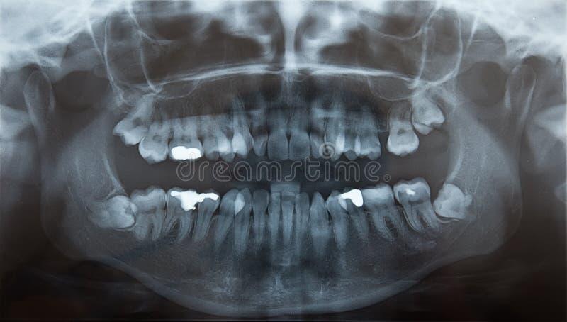 problemayczna promienia zębów mądrość x obraz royalty free