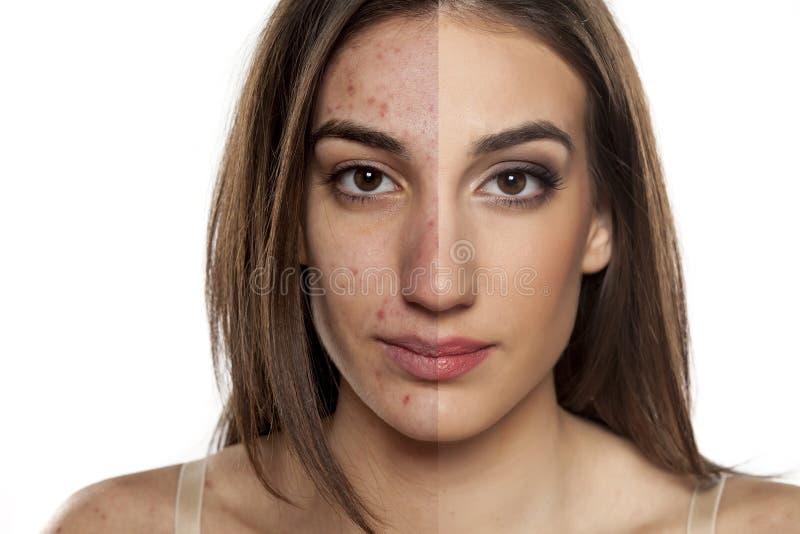 Problemayczna skóra przed i po makeup zdjęcia royalty free