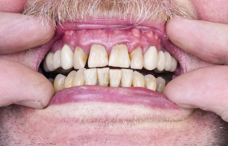 Probleme mit den Zähnen und Zahnfleisch stockfotos