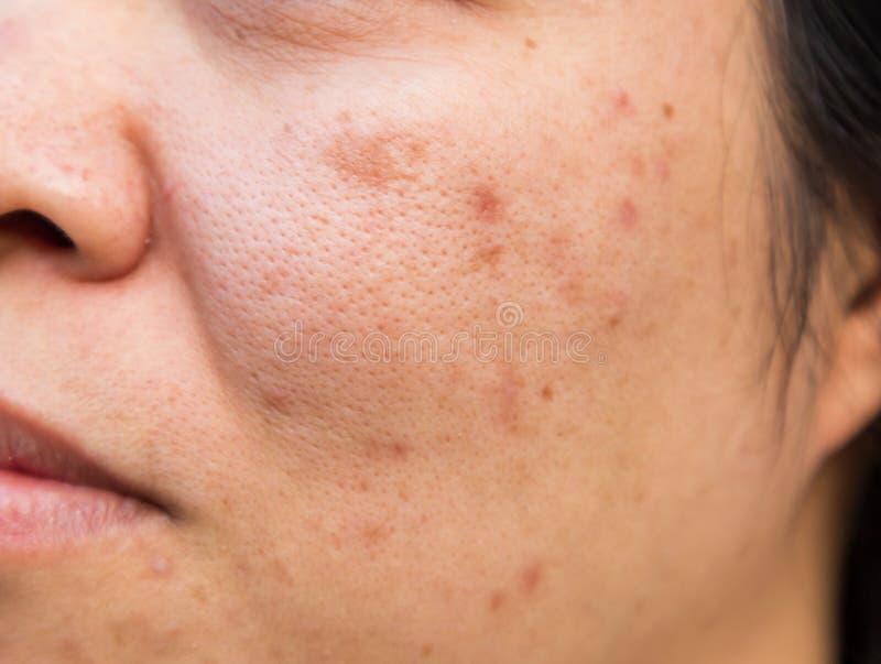 Problemgesichtshaut ist Akne und Verunstaltungen stockbild