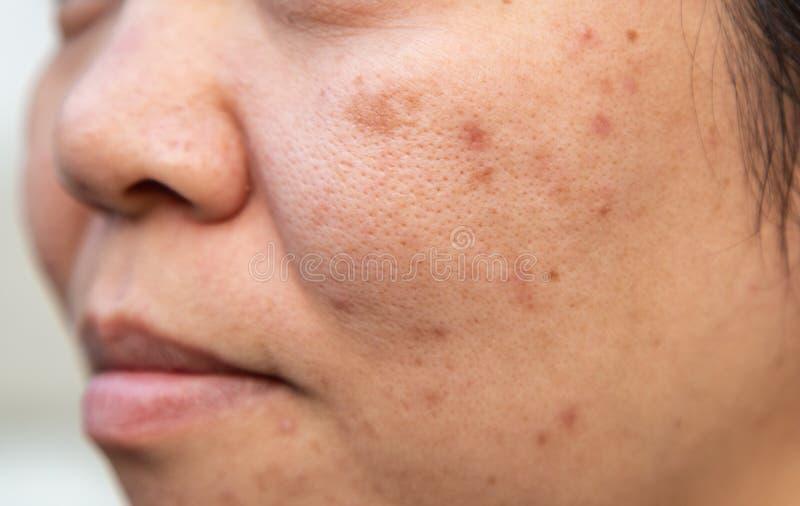 Problemgesichtshaut ist Akne und Verunstaltungen stockfoto