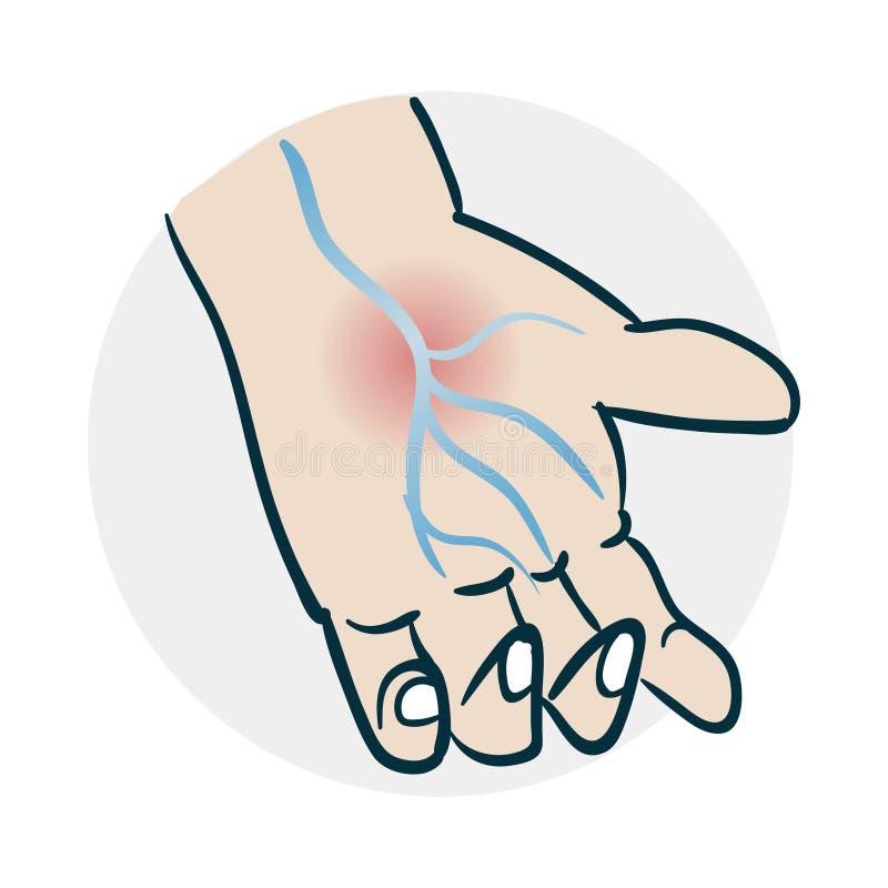 problemi con l'icona delle mani delle vene illustrazione di stock