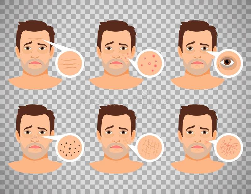 Problemi di pelle dell'uomo illustrazione di stock