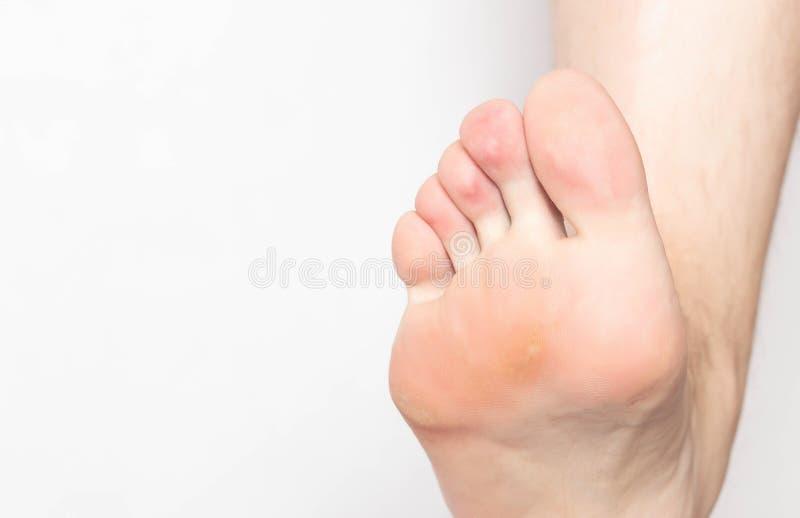 Problemowa skóra z kalus i kukurudze na podeszwie ludzka stopa, skóra, rozognienie i ból, sucha i szorstka, stopa, w górę fotografia stock