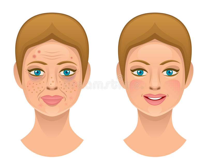 Problems skin. On a white background royalty free illustration