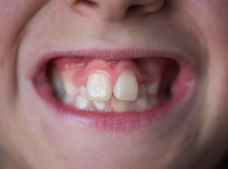Problemy z zębami młodego chłopca Nieprawidłowe ugryzienie zdjęcie royalty free