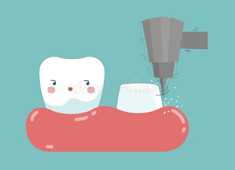 Procédure d'installation dentaire, dent et dents de couronne de concept dentaire illustration libre de droits