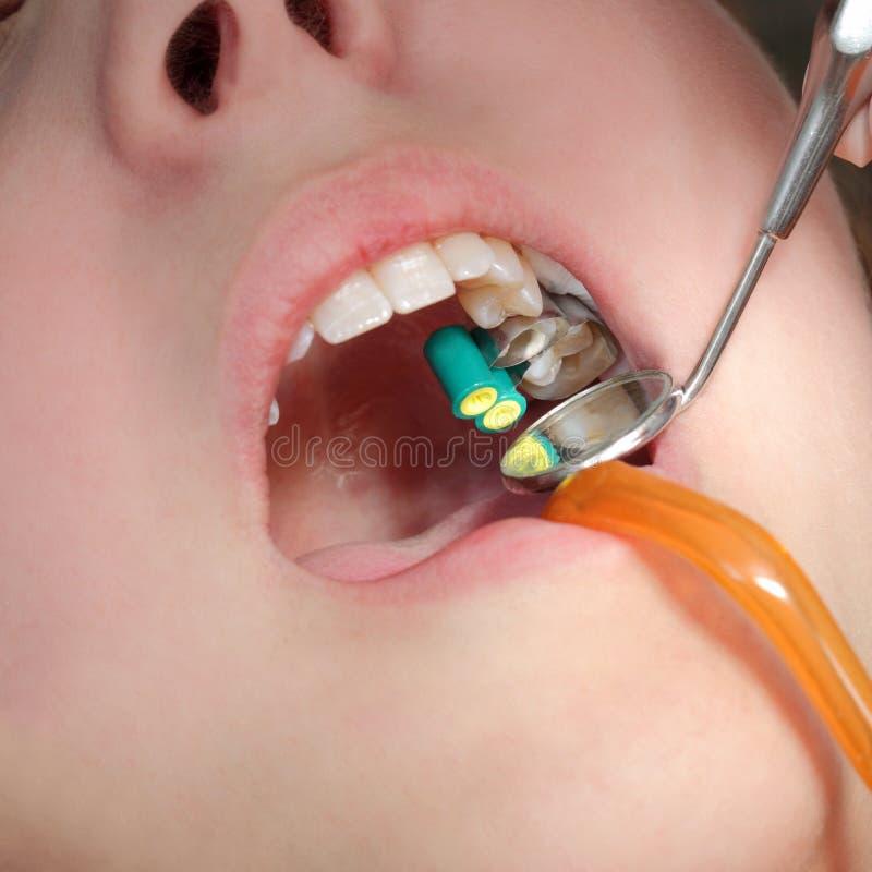 Procédure dentaire, dent de perçage photographie stock libre de droits