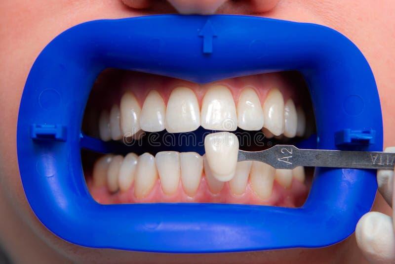 Procédure pour comparer les nuances de couleur des dents utilisant des essais avant le blanchiment photographie stock libre de droits