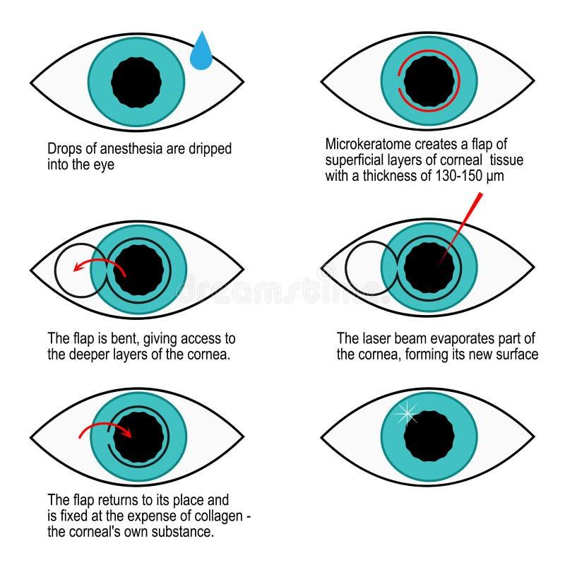 Procedimento da correção do laser da visão ponto por ponto Infographics ilustração stock