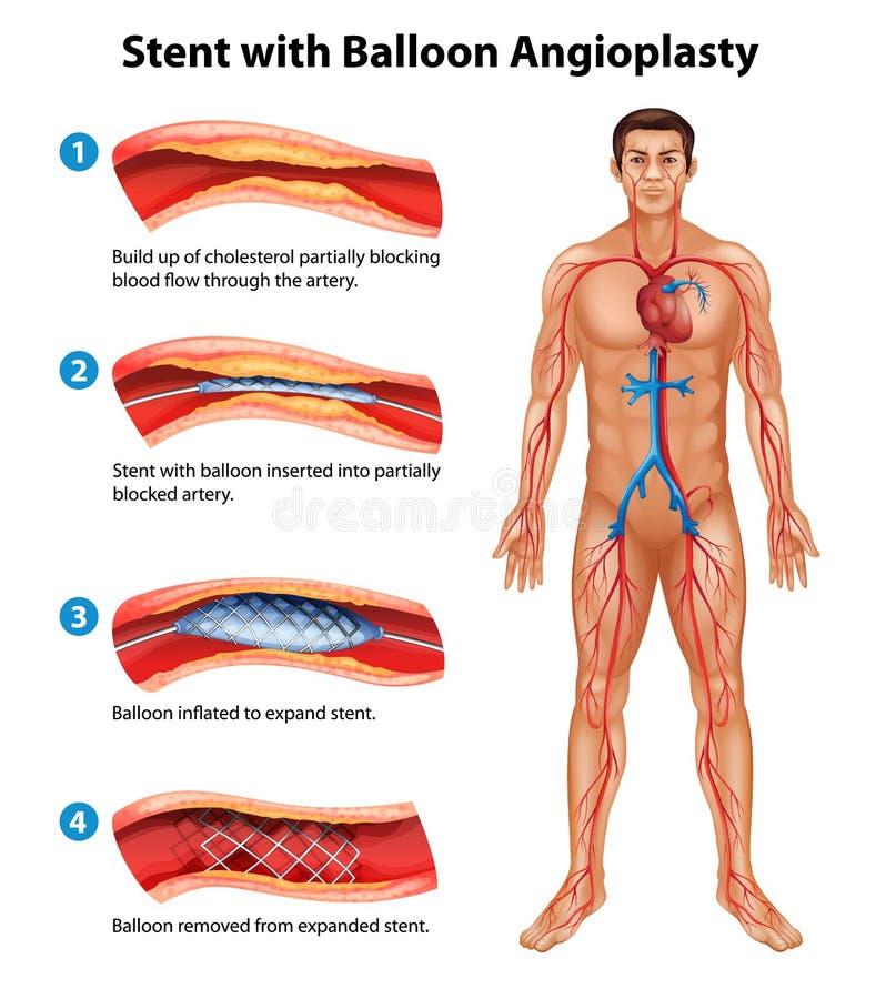 Procedimiento de la angioplastia del Stent ilustración del vector