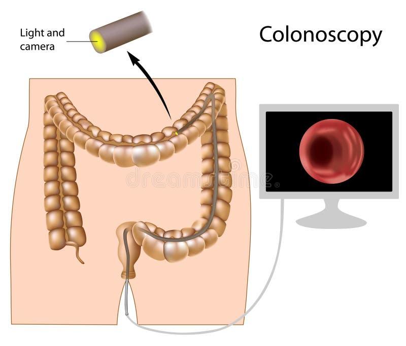 Procedimiento de la colonoscopia stock de ilustración