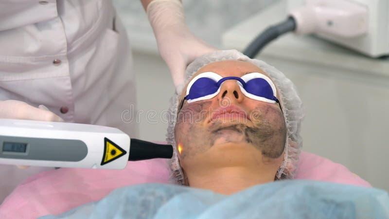 Procedimiento de la peladura de la cara de carbono imagen de archivo libre de regalías