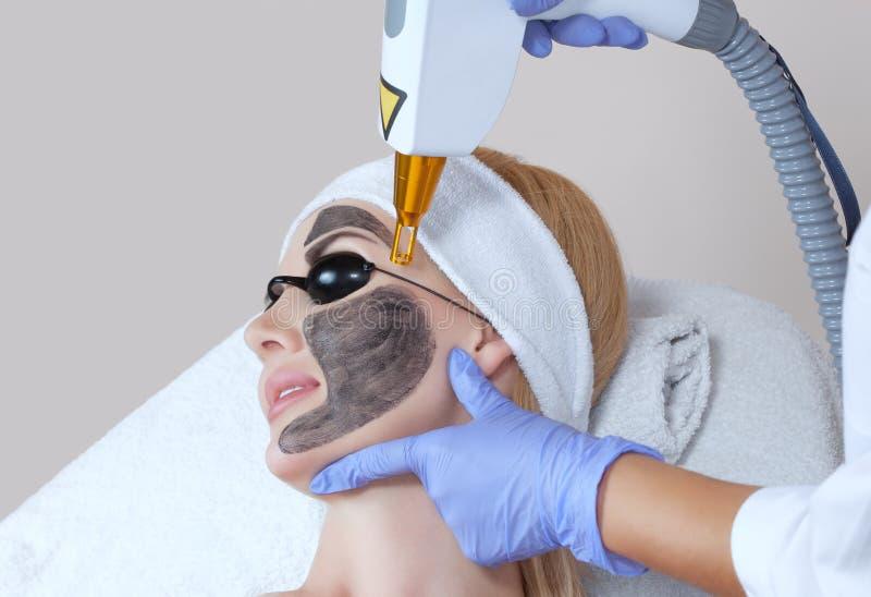 Procedimiento de la peladura de la cara de carbono en un salón de belleza Cosmetología del hardware fotografía de archivo libre de regalías
