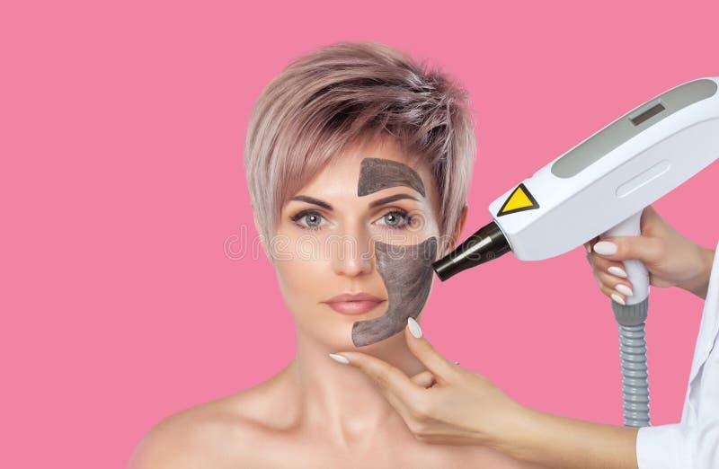 Procedimiento de la peladura de la cara de carbono en un salón de belleza Tratamiento de la cosmetología del hardware Cosmetologí fotos de archivo libres de regalías
