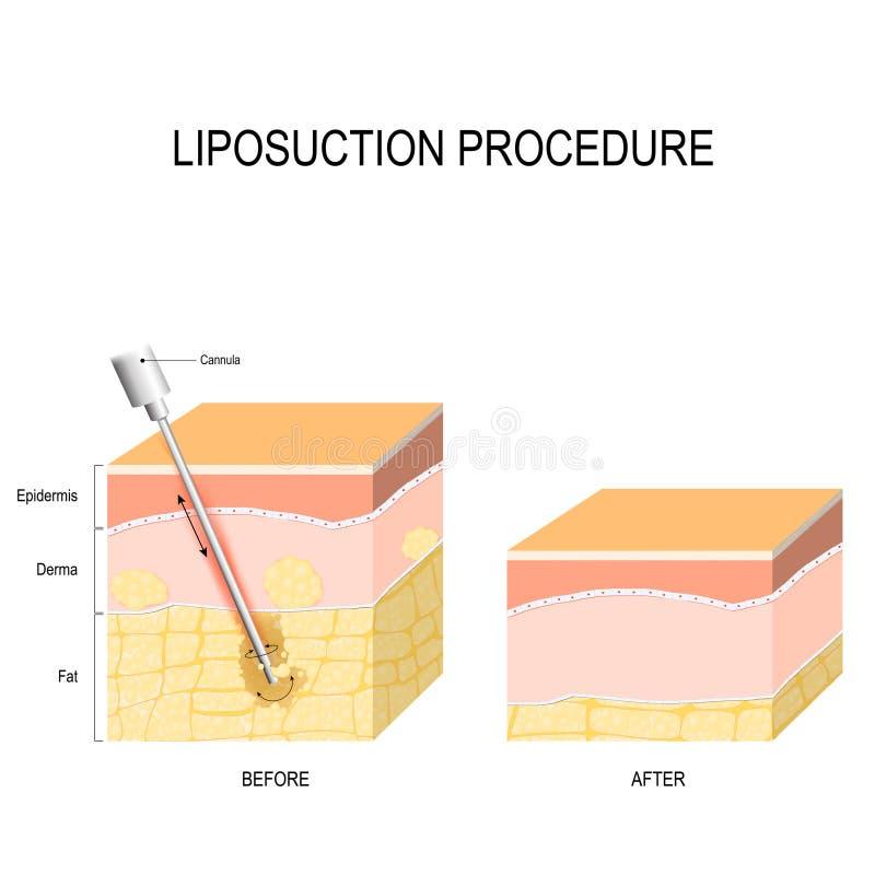 Procedimiento del Liposuction Antes y después ilustración del vector