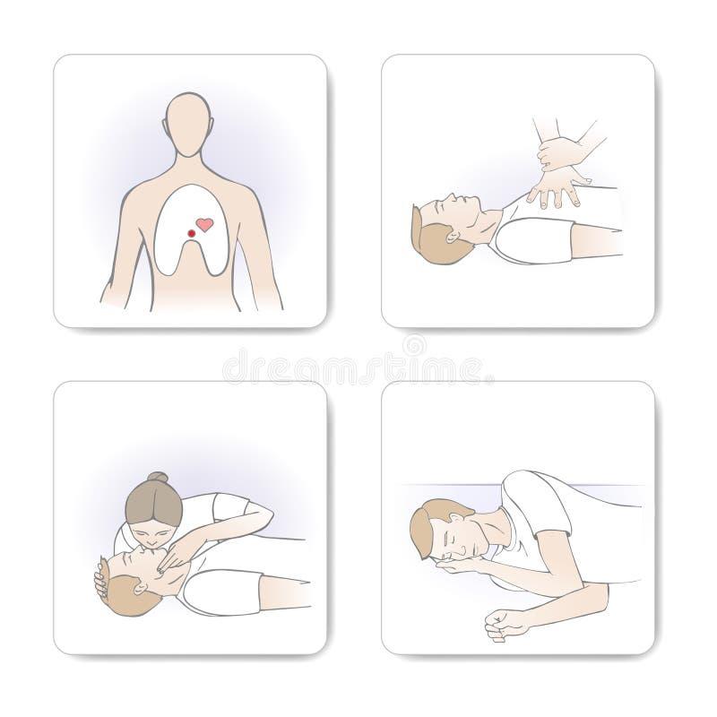 Procedura di CPR illustrazione di stock