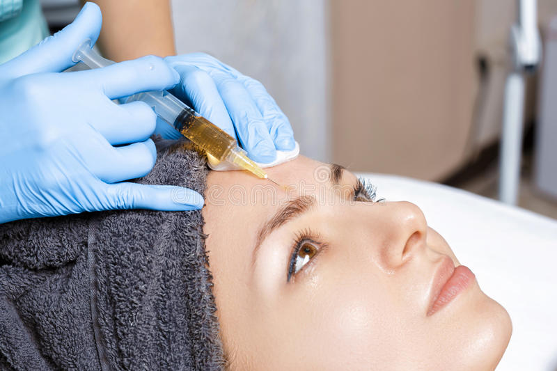 Procedure Plasmolifting injection. plasma injection into the skin of the forehead of patient. Procedure Plasmolifting injection. plasma injection into the skin stock photo