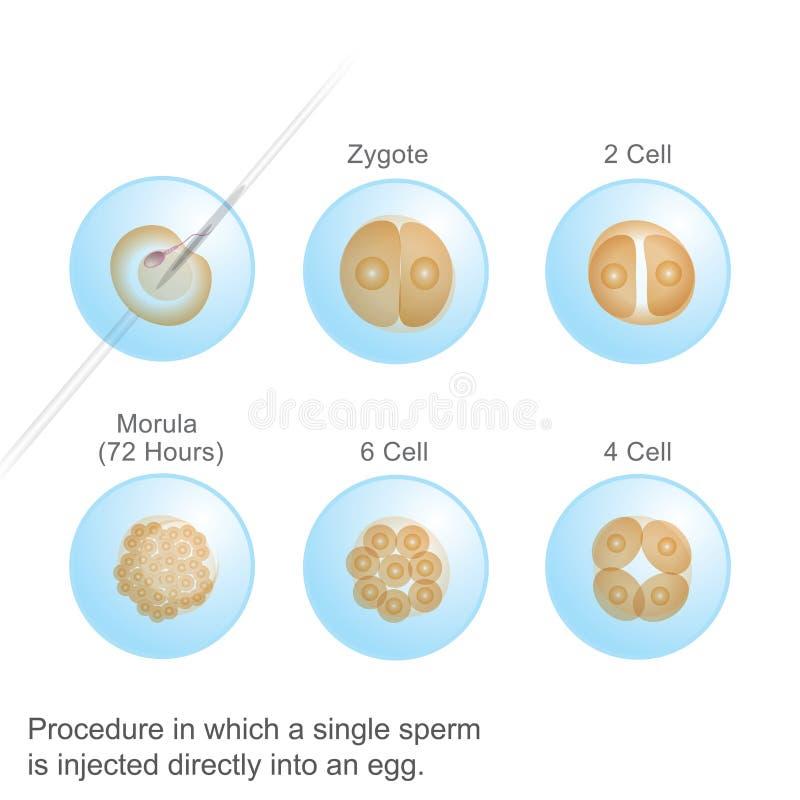 Proces waarin één enkel Sperma stock illustratie