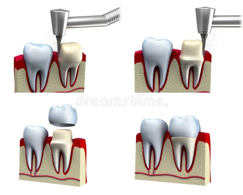 Proceso de instalación dental de la corona stock de ilustración