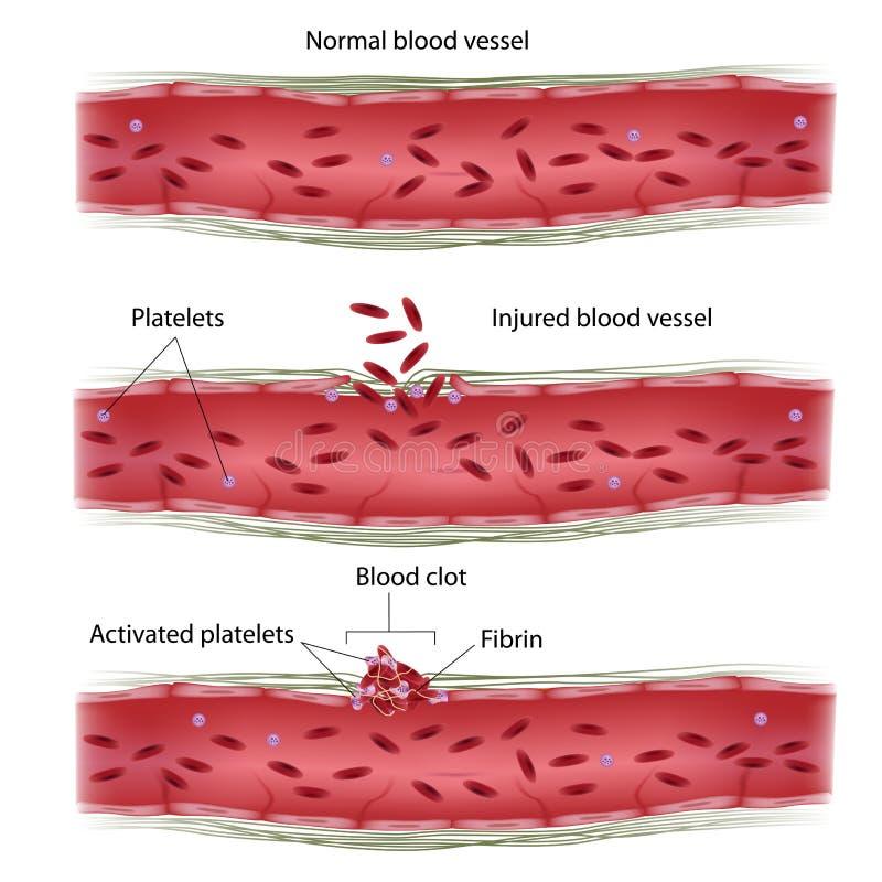 Proceso de la coagulación de sangre libre illustration