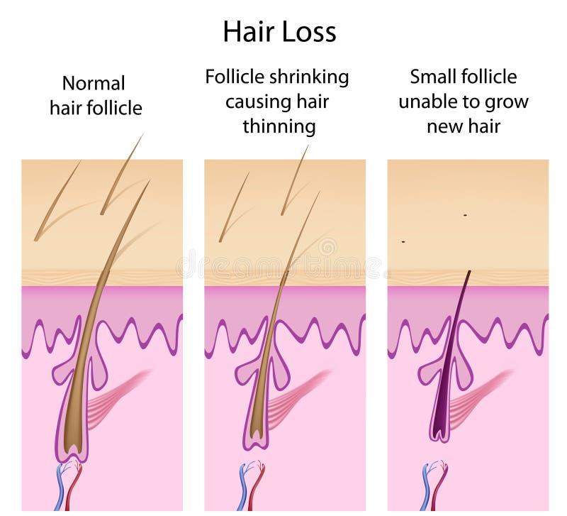 Proceso de la pérdida de pelo libre illustration