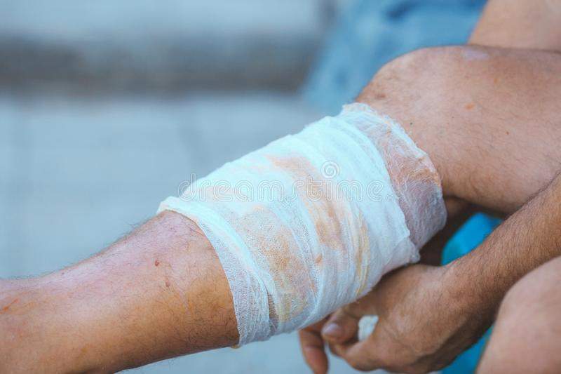 Process of applying a bandage on the injured leg royalty free stock photos