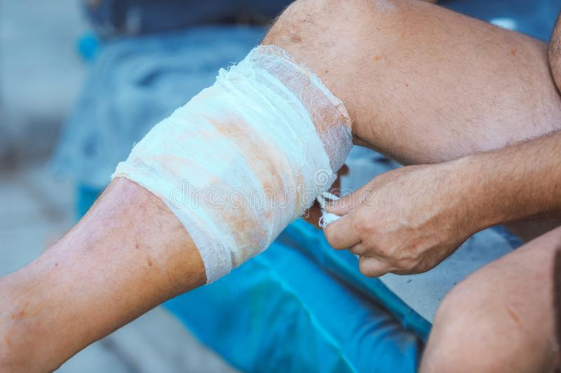Process of applying a bandage on the injured leg royalty free stock images