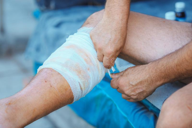 Process of applying a bandage on the injured leg stock images