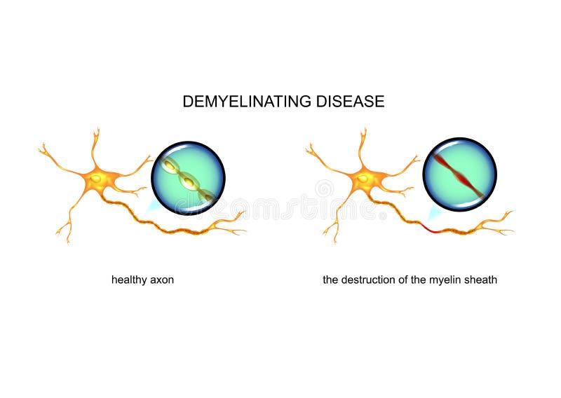 Process av förstörelse för nervfiber stock illustrationer