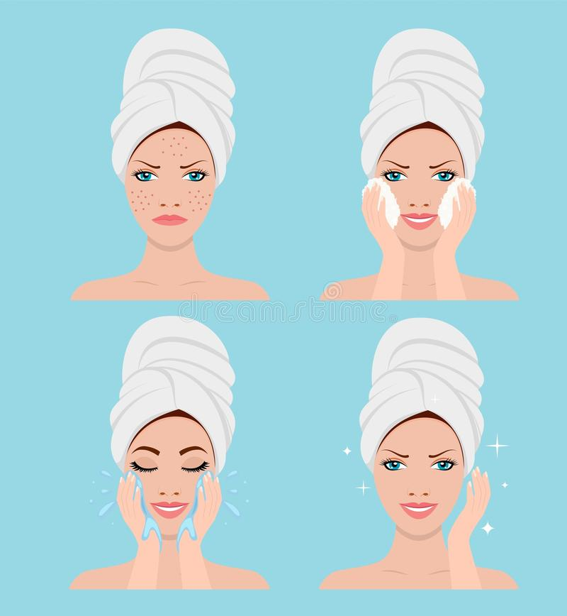 Process of cleansing the face from acne. Beautiful woman in process of cleansing the face from acne. SPA beauty and health concept. Vector illustration in flat stock illustration